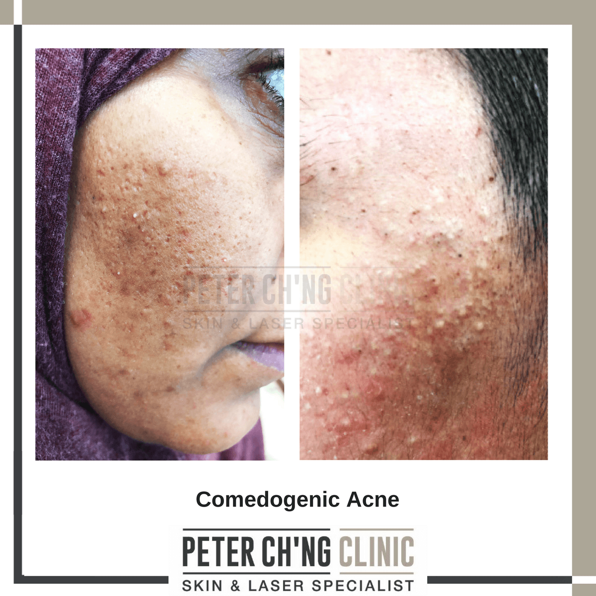 Comedogenic acne