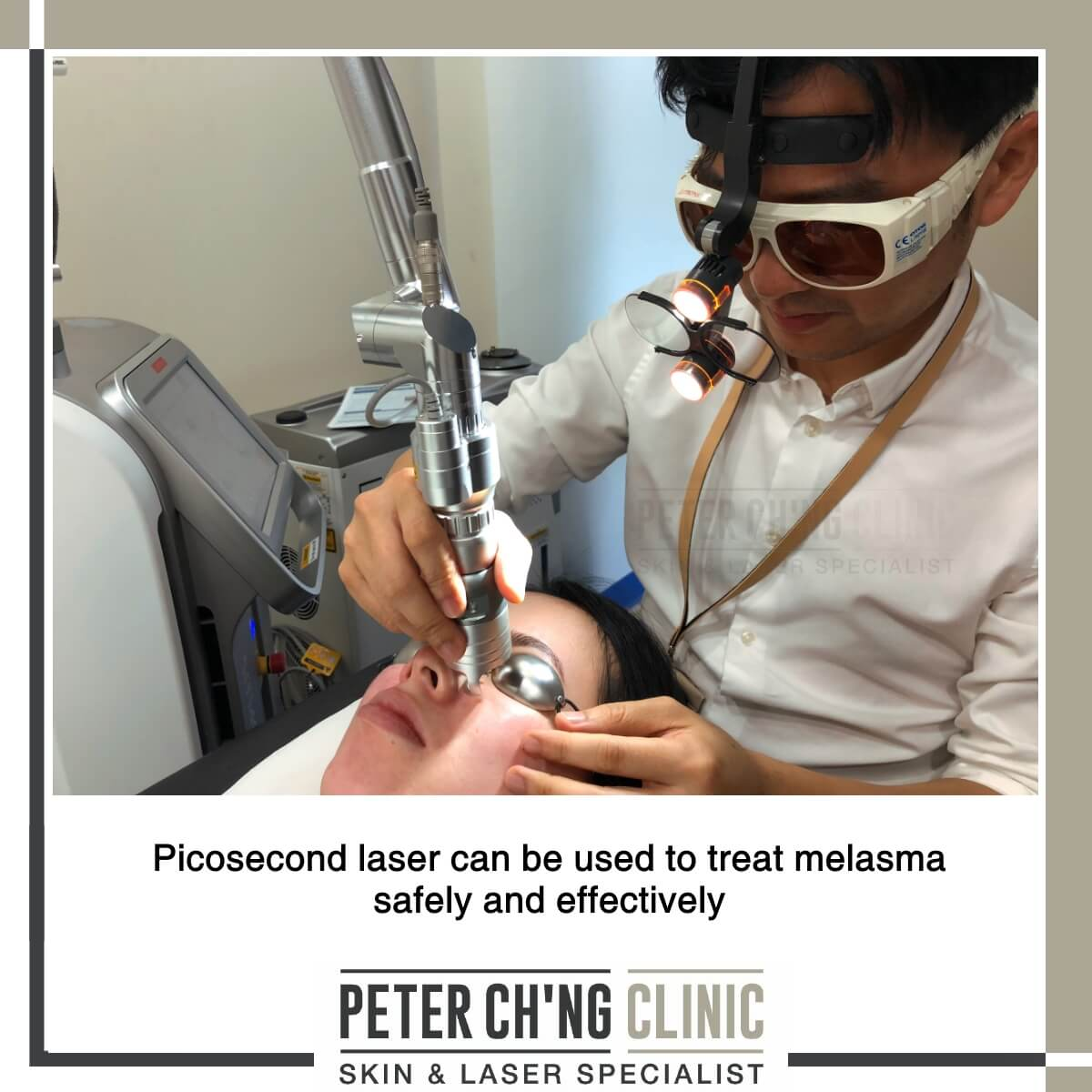 Picosecond laser for melasma