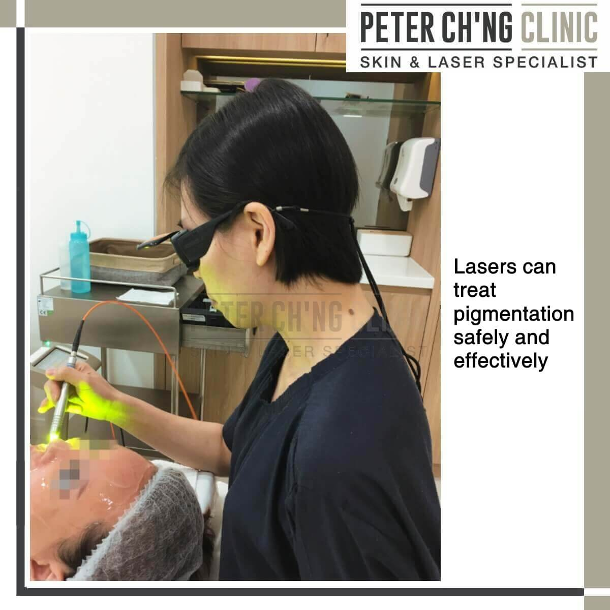 Patient Mailbox Treating Uneven Skin Tone Peter Ch Ng
