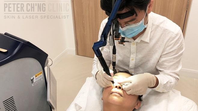 Wart treatment kuala lumpur - primariacetateni.ro, Warts treatment malaysia