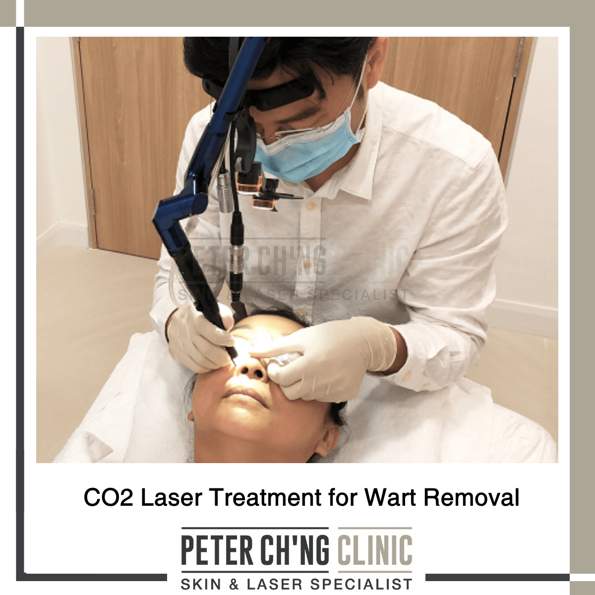 5 Reasons Why You Shouldn't Remove Warts On Your Own | Peter Ch'ng