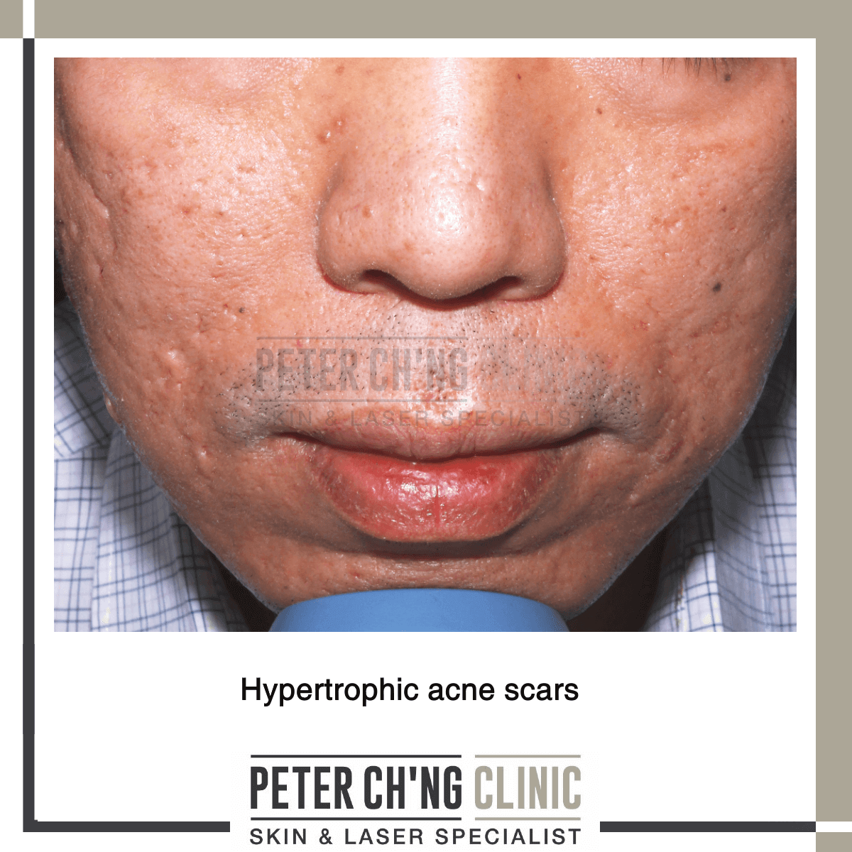 Hypertrophic acne scars