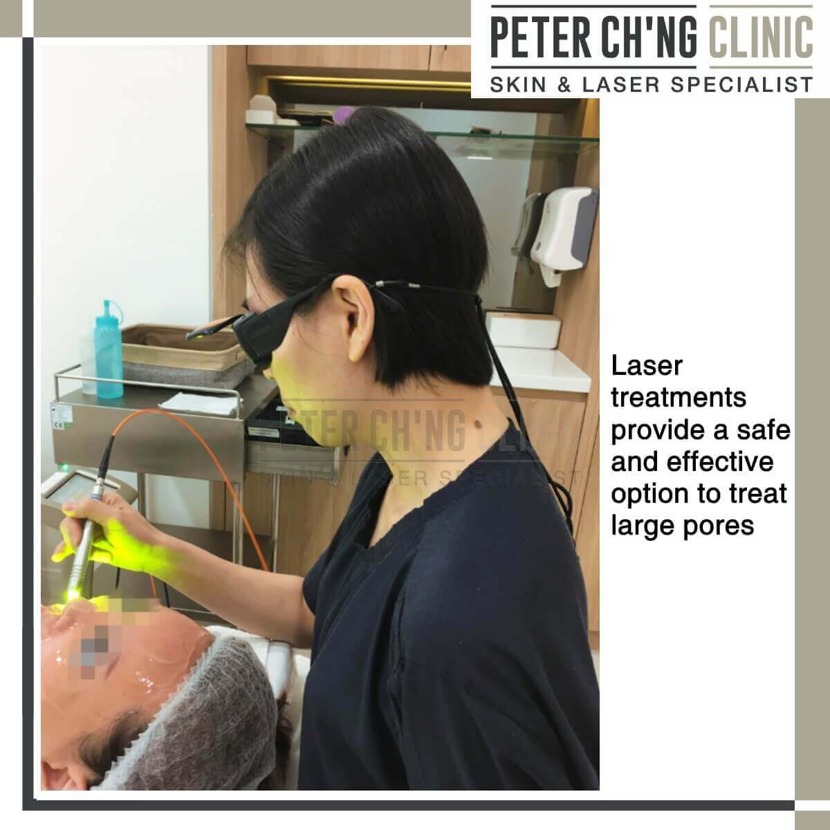 Laser treatment for large pores