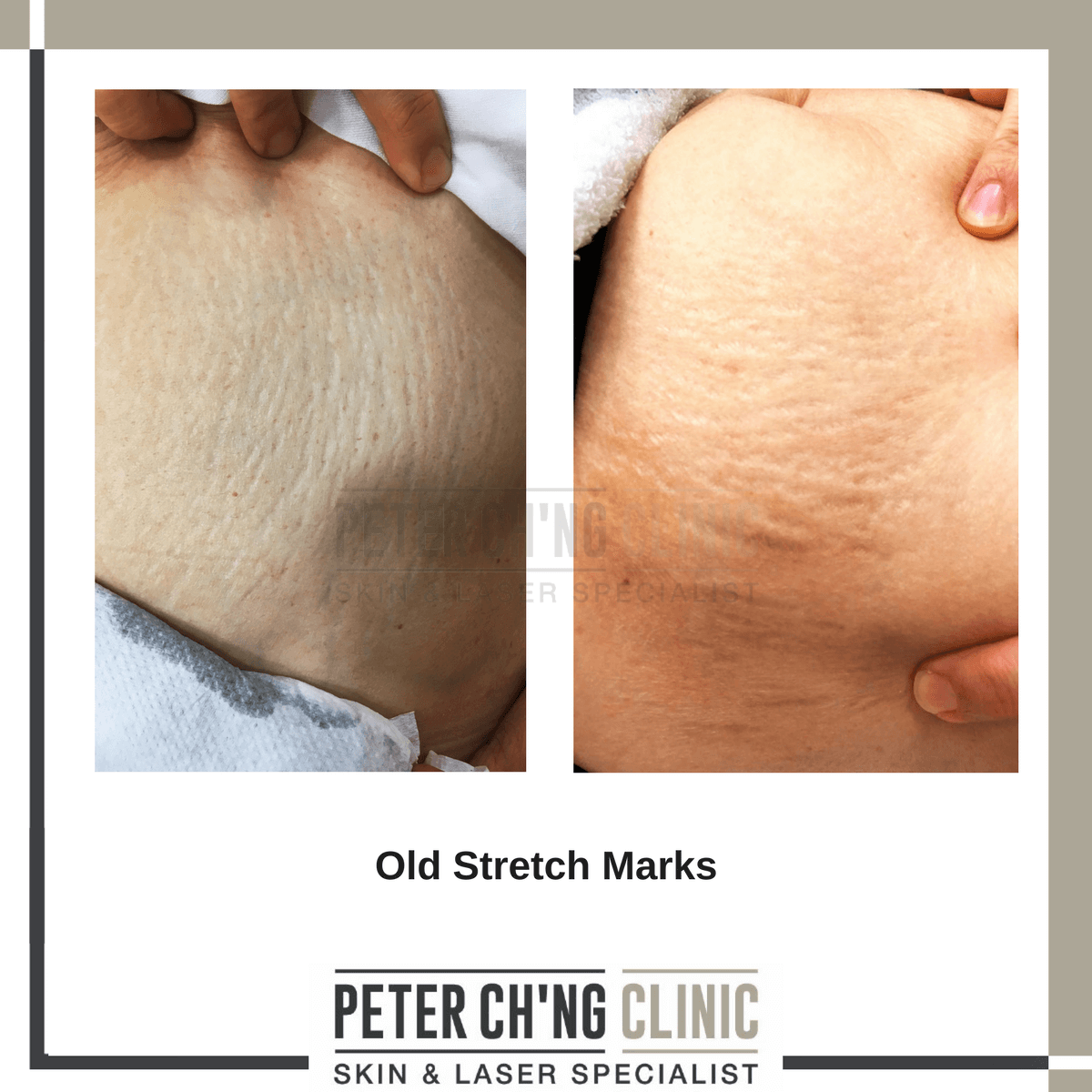 Old stretch marks