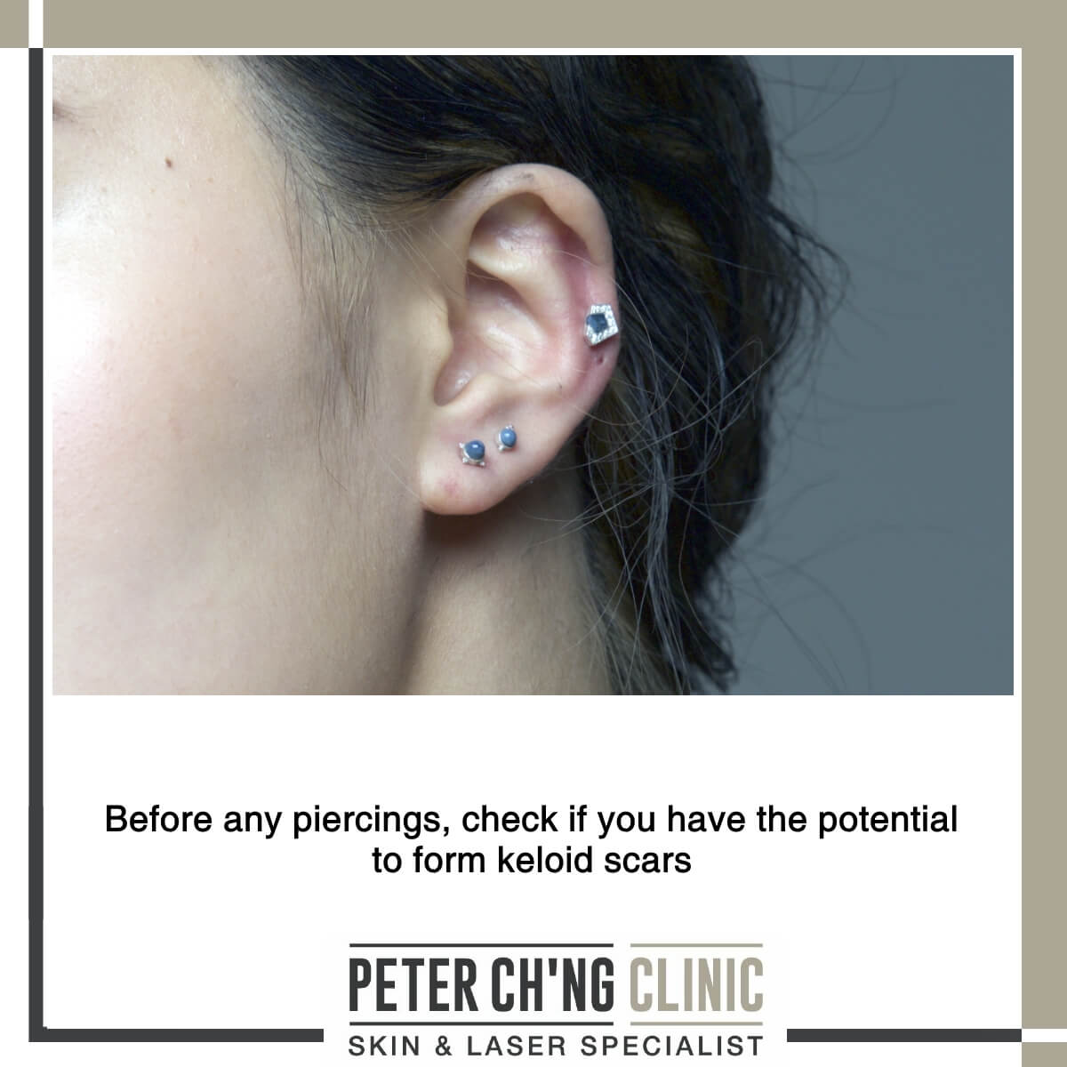 Piercing and keloids