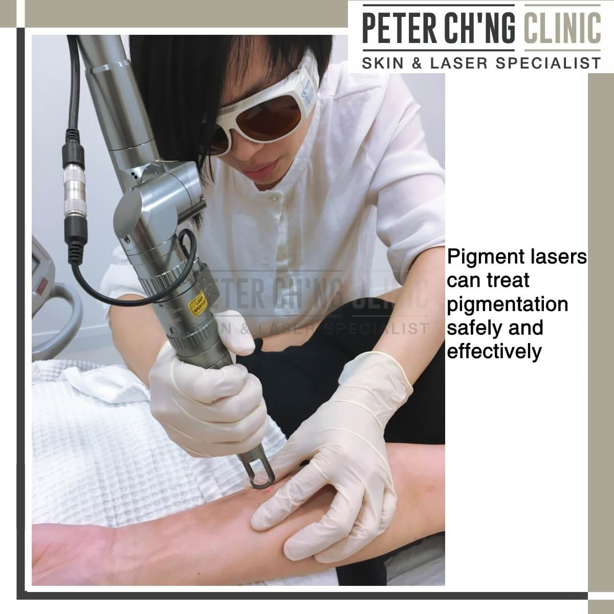 Pigment laser for hyperpigmentation