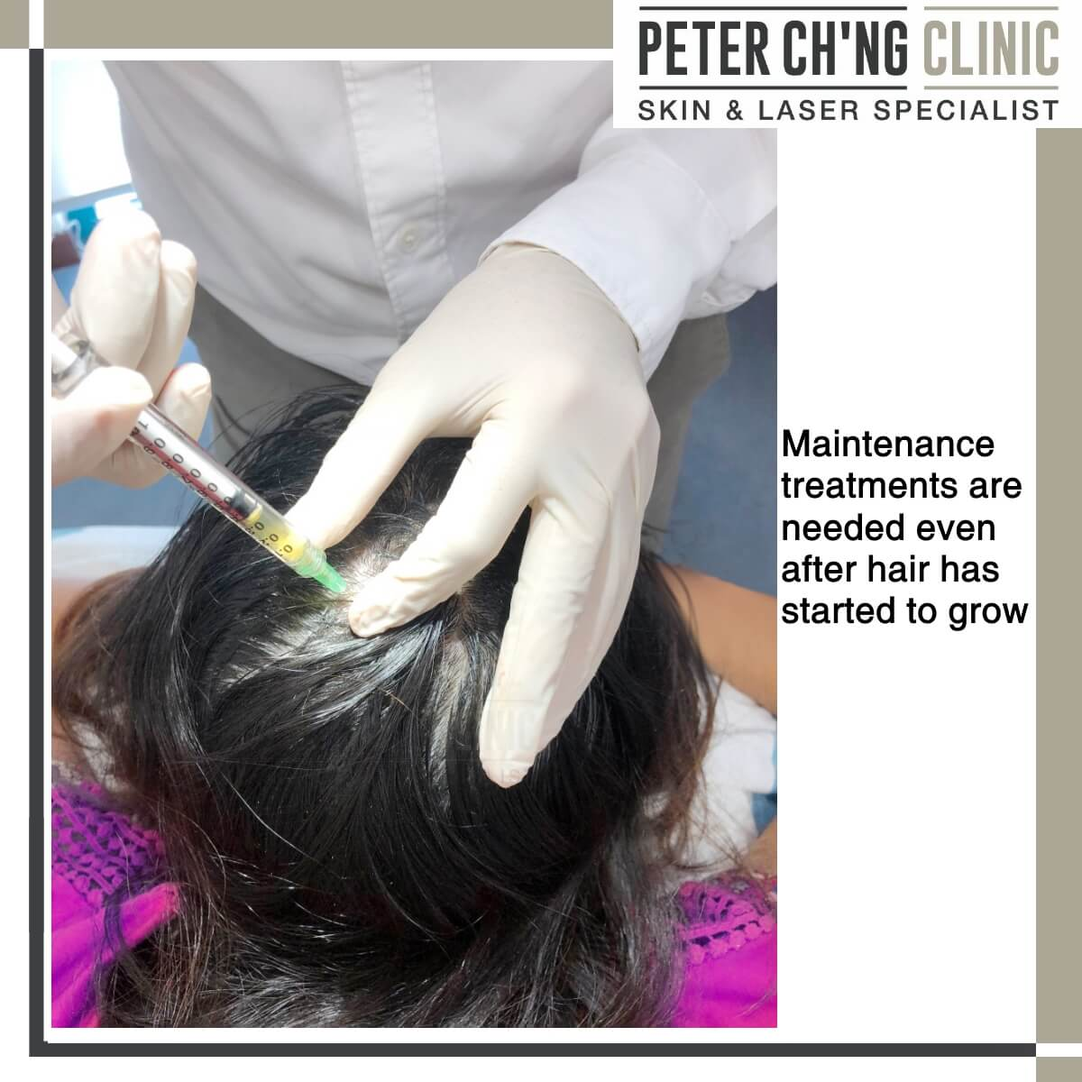 PRP Treatment for Hair Loss